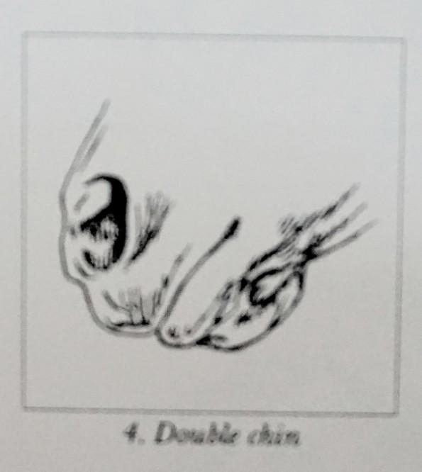 doublechin
