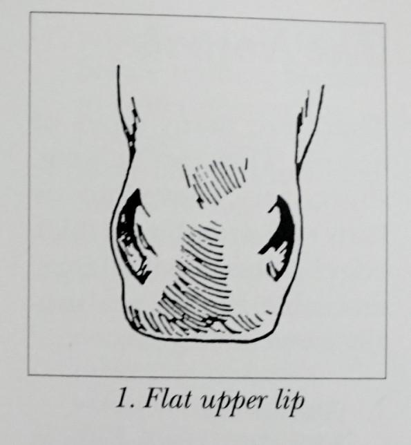 flatlip