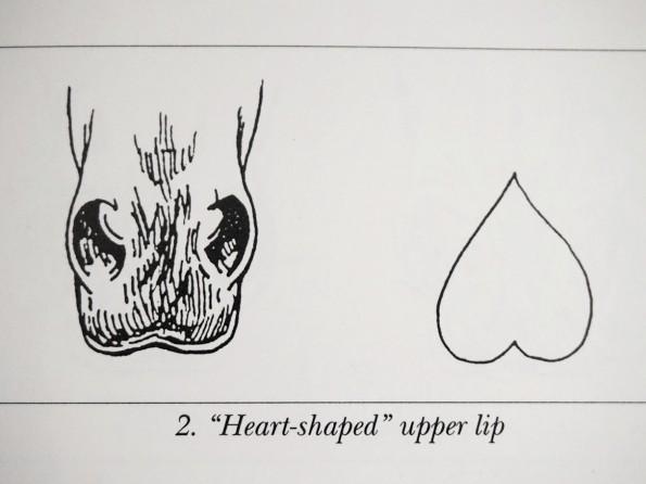 heartlip