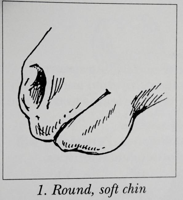 roundchin